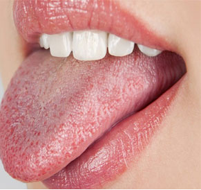 Symptoms of dry Mouth